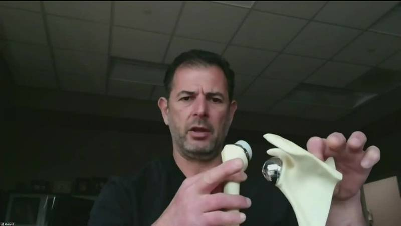 Midday Medical: Reverse Total Shoulder Replacement Surgery as explained by Dr. Tuvi Mendel at...