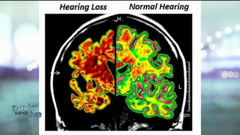 Untreated hearing loss connection to cognitive decline